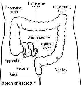 Large bowel showing a polyp