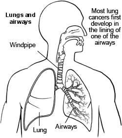 Lung cancer symptoms and causes of cancer of the lung patient lungs and airway lung cancer ccuart Gallery