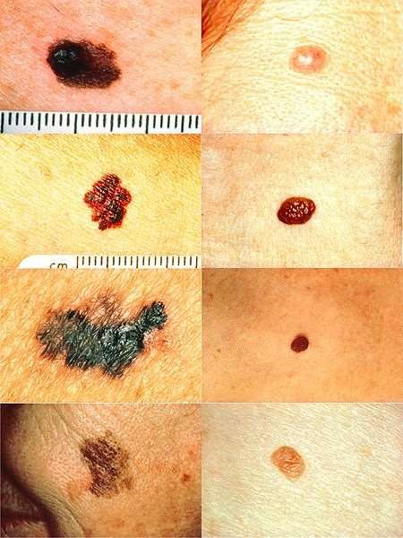 Melanoma vs normal mole ABCD rule