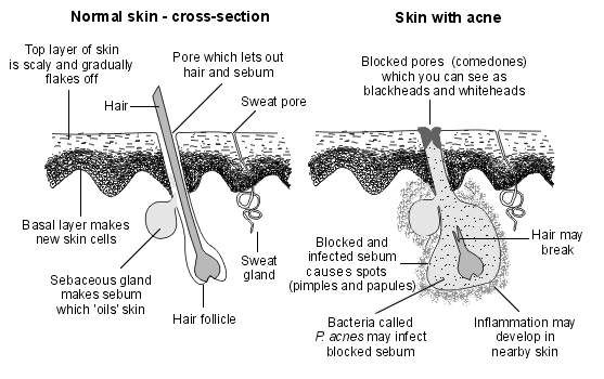 normal skin and acne skin