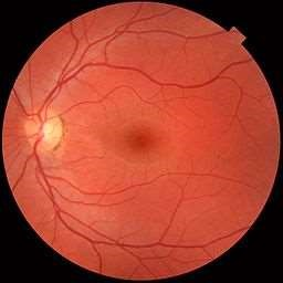 Fundus photo of normal left eye