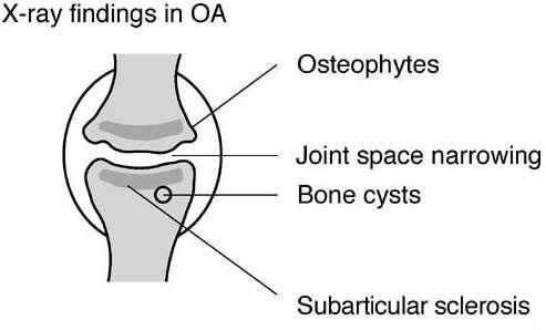 Osteoarthritis X-ray