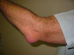 Olecranon Bursitis Elbow Wiki