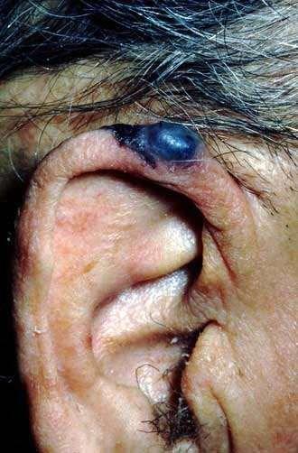 NODULAR MELANOMA - EAR