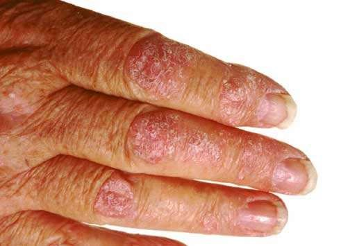 PSORIASIS OF HAND