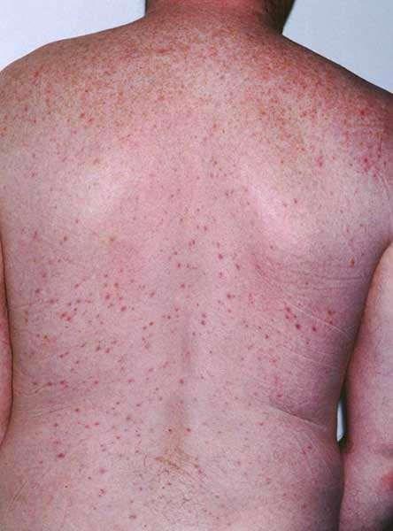 Mild gram negative folliculitis