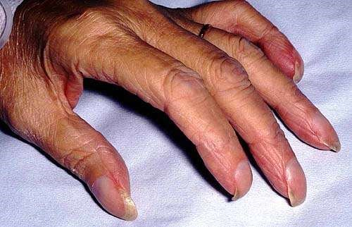 Nail Disorders And Abnormalities Medical Information