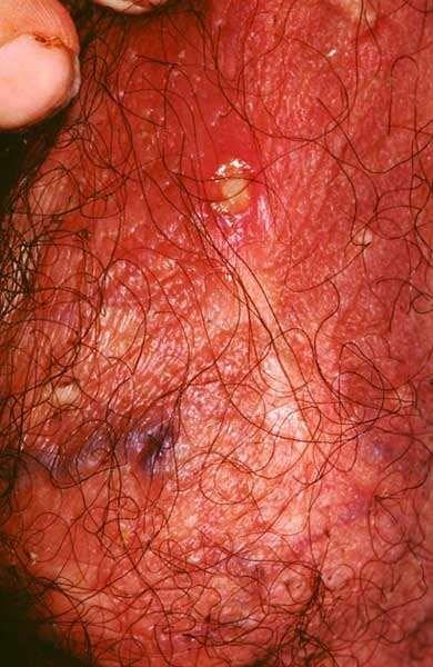 BEHCET'S DISEASE - SCROTUM