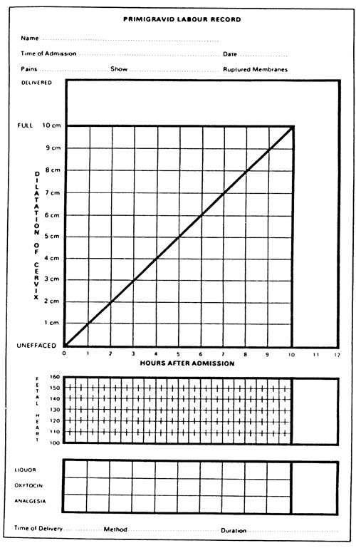 DUBLIN PARTOGRAM
