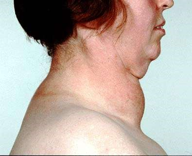 Goitre Thyroid Swelling Thyroid Gland Symptoms And Treatment