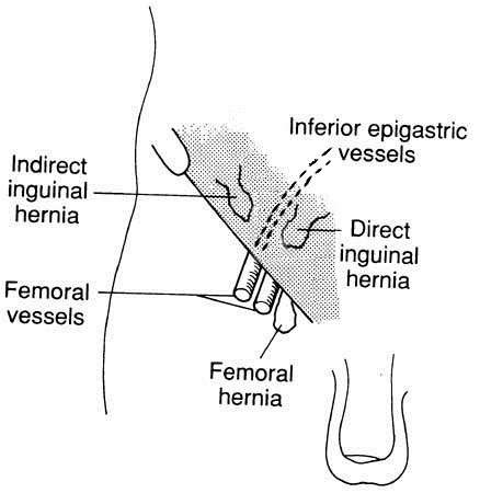 Femoral Hernias. Groin and thigh hernias. Patient | Patient
