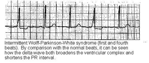 WOLFF-PARKINSON-WHITE SYNDROME