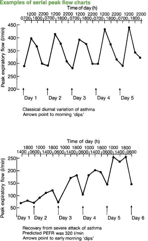 Peak Flow Recording Peak Flow Monitoring Asthma Tests Patient