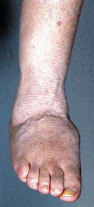 CHARCOT JOINT