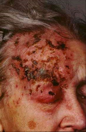 SHINGLES - OPHTHALMIC