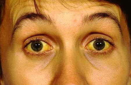 Adult jaundice face spots