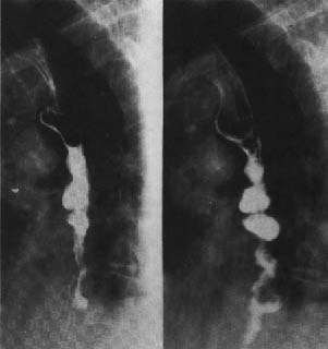 OESOPHAGEAL SPASM