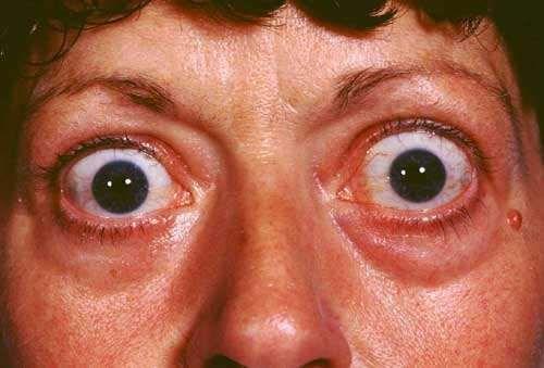Thyroid Eye Disease Information About Thyroid Eye Disease Patient