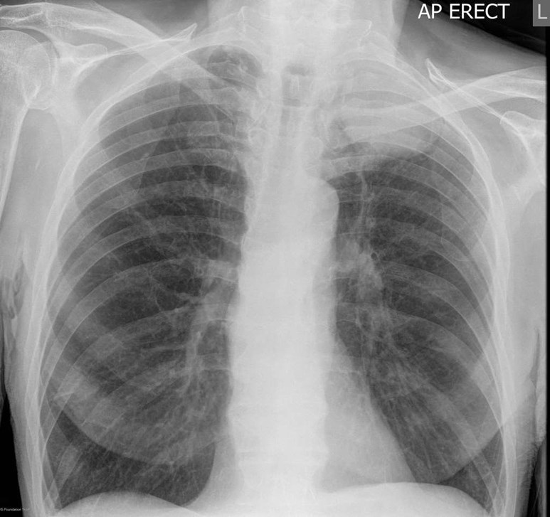 Chest xray showing left apical tumour