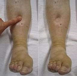 Swollen Legs Symptoms Causes And Treatment Patient