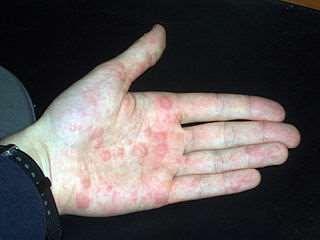 Pompholyx hand