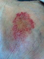 Pigmented Purpuric Dermatosis