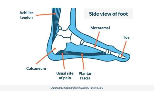 Side view of foot (pain)