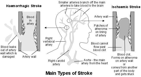 stroke?v=636469588290000000 stroke information symptoms and treatment of stroke patient stroke diagram at aneh.co