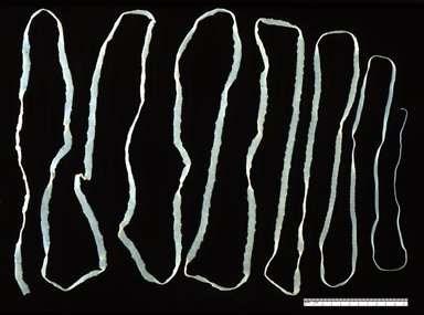 Tapeworm taenia sagonata.png