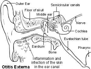 The ear - otitis externa