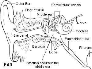 The ear showing otitis media