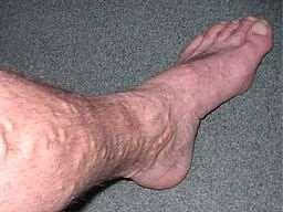 Varices en la pierna (Wikimedia Commons)