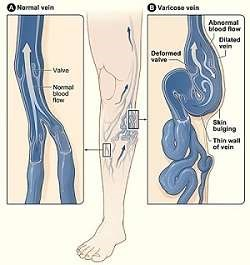 Varices (Wikimedia Commons)