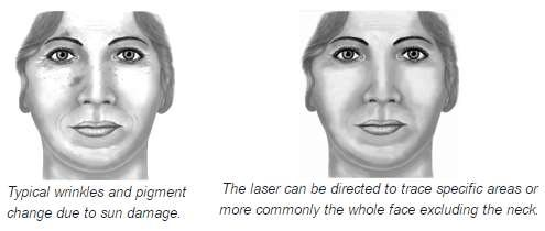 Wrinkles and laser surgery
