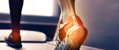 When to start worrying about your bones and osteoporosis