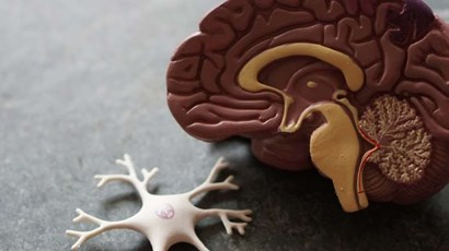 Early brain scans can predict MS prognosis
