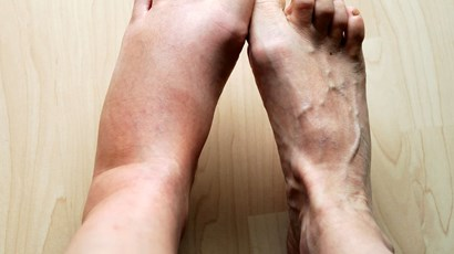 What are lipoedema and lymphoedema?