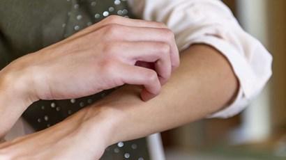 Eczema management plans: do they help control your eczema?