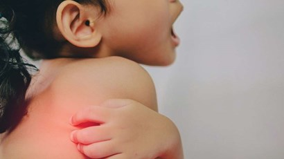 What to do when your child has a rash