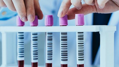 How to prepare for a blood test