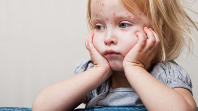 Why measles is more serious than you think