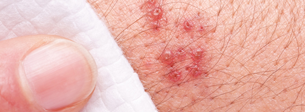 how to know if you have herpes without symptoms